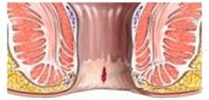pierderea în greutate hemoroizii interne
